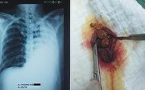 Phẫu thuật cắt túi mật nội soi do sỏi trên bệnh nhân chỉ có 1 lá phổi
