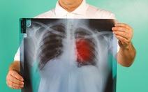 Đưa phổi ra khỏi cơ thể để 'làm sạch' ung thư