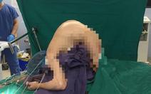 Phẫu thuật nắn chỉnh cột sống cho bệnh nhân 10 năm không được nằm bình thường