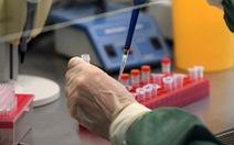 Nga không tiết lộ tên vắc xin COVID-19 tiêm cho ông Putin, vì sao?