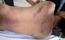 Khởi tố phạm nhân đánh chết một phạm nhân khác trong nhà tạm giữ