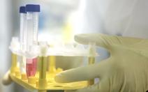 WHO cảnh báo việc chủ động lây nhiễm virus corona để tăng tốc nghiên cứu vắcxin