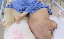 Phẫu thuật 'giải cứu' chân trái khổng lồ, nặng 42kg cho cô gái 25 tuổi