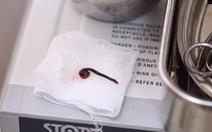 Con vắt dài 5cm sống 1 tuần trong mũi bé trai 3 tuổi