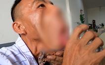 Tia hi vọng cho 'Chàng trai mặt quỷ' 15 năm bị người xa lánh, bệnh viện 'chê'