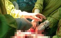 Phẫu thuật lấy khối u xơ to hơn một bào thai trong bụng nữ bệnh nhân