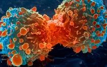 Phát hiện 'thời điểm vàng' ngăn chặn ung thư di căn