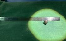 Phẫu thuật lấy viên bi bằng kim loại từ cổ bệnh nhân