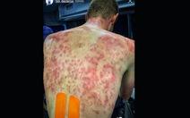 """Mưa đá """"tấn công"""" các tay đua ở Giải đua xe đạp Criterium du Dauphine 2020"""