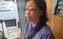 Công an vào cuộc vụ hành khách đánh nữ tiếp viên xe buýt vì bị nhắc mở nhỏ nhạc
