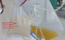Bệnh nhân bị viêm tụy cấp có huyết tương trắng đục như sữa