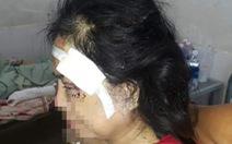 Điều tra vụ người đàn ông dùng thanh gỗ đánh vợ cũ dã man