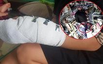 Cô nhân viên bị cướp đâm ở shop đồ trẻ em: 'Tôi nghĩ tên cướp không tha cho tôi rồi'