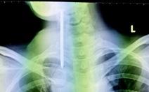 Phẫu thuật lấy đinh dài 8cm do bệnh nhân rối loạn tâm thần tự nuốt