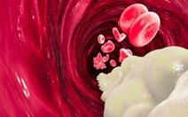 Phát hiện dấu hiệu mới chẩn đoán sớm 'sát thủ thầm lặng' tim mạch
