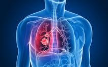 Hiểu đúng về sức khỏe tâm lý, dinh dưỡng trong điều trị ung thư phổi