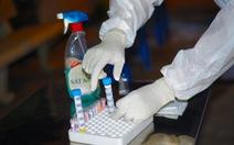 Lấy mẫu xét nghiệm COVID-19 khẩn cấp cho 1.000 nhân viên Bệnh viện Mắt TP.HCM