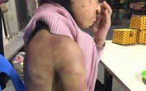 Hà Nội chỉ đạo xử lý vụ bé gái 12 tuổi nghi bị bạo hành, xâm hại