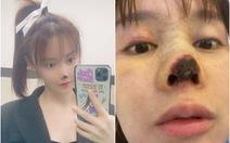 Người đẹp Trung Quốc công khai 'ác mộng thẩm mỹ'