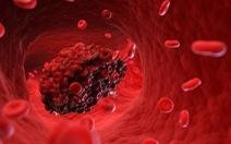 COVID-19 và chứng đông máu chết người được phát hiện một năm trước