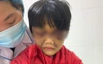 Bé gái 6 tuổi bị mẹ ruột đánh thâm tím mặt, tinh thần hoảng loạn