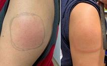 Hiện tượng tay sưng đỏ sau khi tiêm vaccine COVID-19 của Moderna