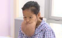 Khối u bằng hạt gạo trên mặt cô gái 19 tuổi đã phình to khổng lồ, mổ 6 tiếng mới xong