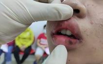 Xài son quảng cáo trên Facebook, thiếu nữ bị sưng môi, rỉ máu, phải đi viện