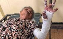 Cụ bà bị gãy xương 2 nơi, bác sĩ bó bột 1 nơi, Bệnh viện Lê Văn Việt nói gì?
