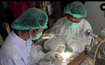 Bong bóng phòng ngừa COVID-19 cho nha sĩ đầu tiên trên thế giới
