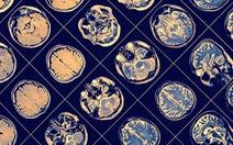 Phần mềm AI của IBM giúp chẩn đoán diễn tiến bệnh Parkinson