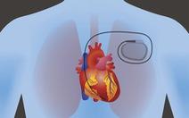 Vật liệu giúp sản xuất điện trong cơ thể người