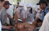 4 người bị bỏng nặng do điện giật