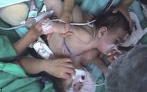 Chile: một trong hai bé song sinh dính liền đã qua đời