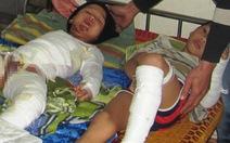 Hà Tĩnh: nghịch keo con voi, hai trẻ bỏng nặng
