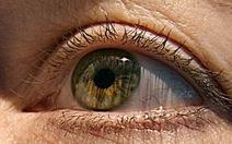 Ấn Độ: giun 13cm sống… trong mắt ông cụ
