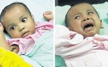 Malaysia tách cặp song sinh dính liền 15 tháng