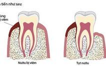 Tại sao cần phải cạo vôi răng?