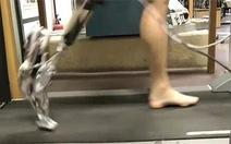 Chân robot - niềm vui trọn vẹn cho người khuyết tật