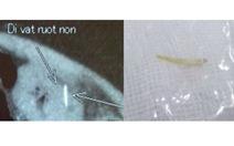 Cảnh giác thủng ruột non do xương cá