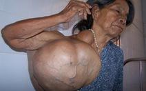 Phẫu thuật khối u 20kg cho một phụ nữ Ba Na