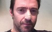 """""""Người sói"""" Hugh Jackman tiết lộ bị ung thư da"""