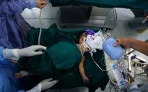 Hai bé song sinh được tách rời đều đang thở máy