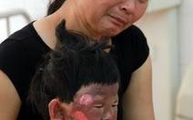 Đổ xăng, 5 người trong một gia đình phỏng nặng