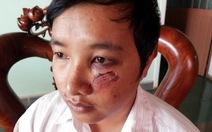 Làm rõ vụ một thầy giáo bị đánh phải nhập viện