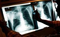 Nhân viên y tế lây bệnh lao cho nhiều trẻ nhỏ