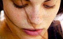 Rối loạn nội tiết gây nám da