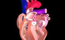 Cảnh giác suy tim khi nghỉ tết