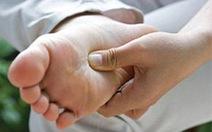 Vết chai chân dễ tái phát