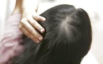 Megumi - Ngăn rụng từ chân tóc, dưỡng tóc mọc dày